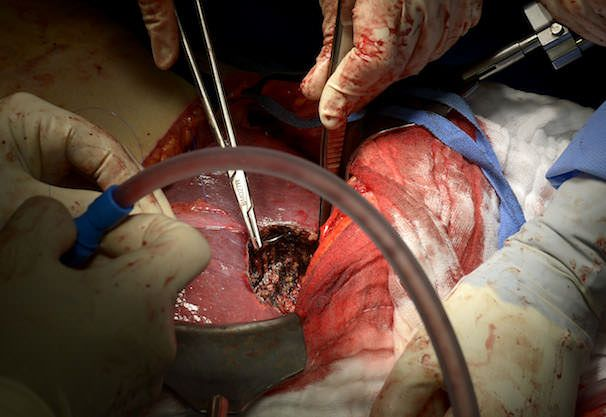 iPad в хирургии в медицине