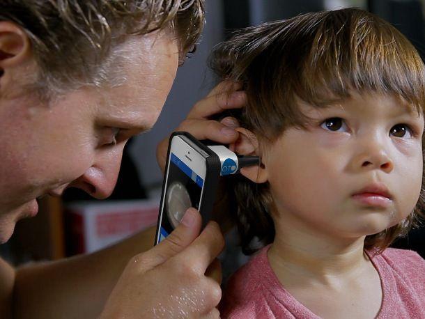 Аксессуар Oto для смартфонов поможет диагностировать заболевания ушей