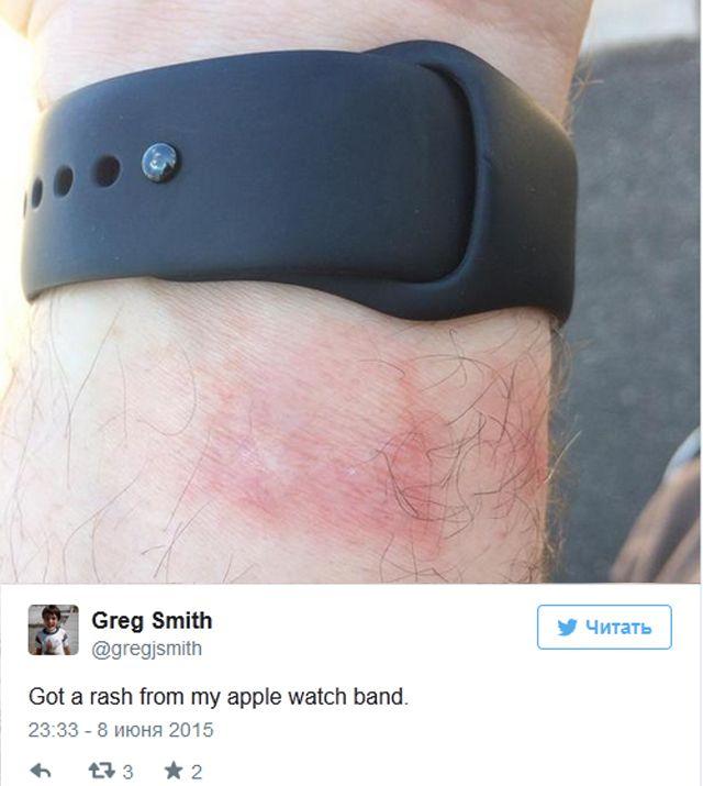 Apple Watch, Fitbit, раздражение, ожоги