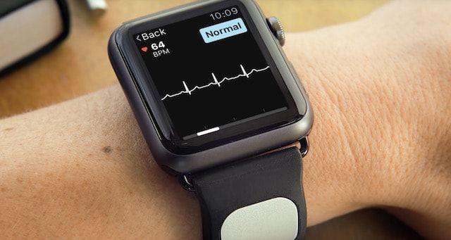 Kardia Band, или как пройти ЭКГ с помощью Apple Watch