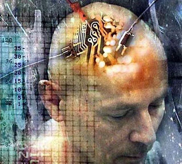 Мозговые импланты