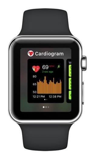 Как контролировать сердечную аритмию при помощи Apple Watch