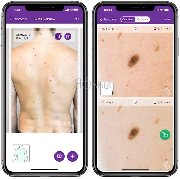 miiskin - Как определять рак кожи с помощью смартфона?