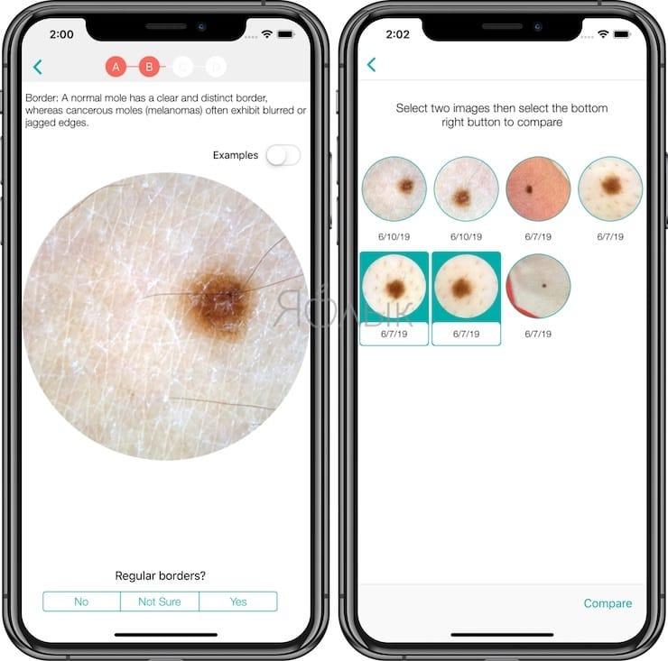 molescope - Как определять рак кожи с помощью смартфона?