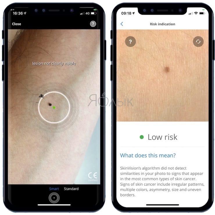 SkinVision - Как определять рак кожи с помощью смартфона?