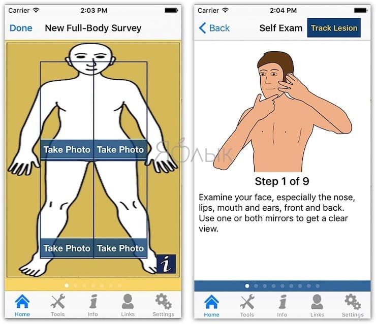 umskincheck - Как определять рак кожи с помощью смартфона?