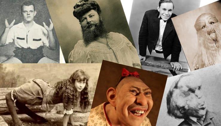 Цирк уродов: 20 самых известных артистов